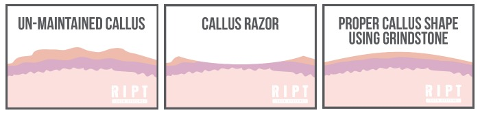 ript callus with razor and grindstone